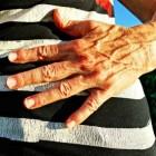 Gezwollen ader: oorzaken en symptomen van een opgezette ader