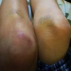 Spontaan blauwe plekken: symptomen, oorzaak en behandeling