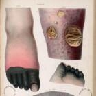 Gangreen: Afsterven van weefsel met wijzigingen aan de huid
