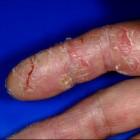 Handeczeem: Chronische huidziekte met droge, gebarsten huid