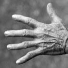 Droge huid: Oorzaken en behandeling van uitgedroogde huid