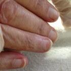 Terry's nagels: Nagelafwijking met band aan rand van nagels