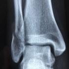 Botbreuk: Typen & symptomen van fracturen (gebroken botten)