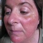 Rood gezicht: oorzaken en behandeling rode huid in gezicht