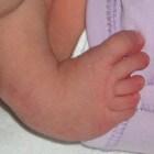Klompvoet: Voet van baby draait naar binnen en beneden