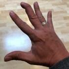 Hamervinger: Eindkootje van vinger niet meer kunnen strekken
