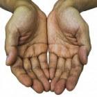 Handpalmpijn: Oorzaken van pijn in handpalm of handpalmen