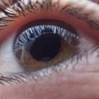 Verlies van perifeer gezichtsvermogen (zicht om zich heen)