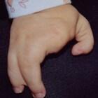 Ectrodactylie: Ontbrekende vingers met krabachtige handen