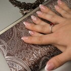 Ingegroeide vingernagel: Symptomen en behandeling
