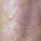Schilferige huid: oorzaken en symptomen van schilfering
