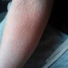 Cholinerge urticaria: Netelroos (galbulten) door warmte