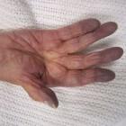 Blauwe handen en voeten: oorzaken van perifere cyanose