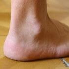 Artrose in de enkel: symptomen en behandeling enkelartrose