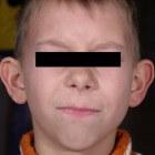 Flaporen: Oorafwijking met afstaande oren van hoofd