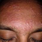 Puistjes op voorhoofd: verwijderen van acne in het gezicht