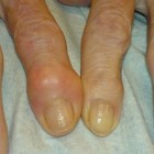Artrose van de vingers: oorzaak en behandeling vingerartrose