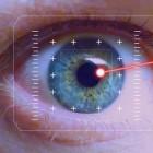 Lasercoagulatie oog: Behandeling van abnormale bloedvaten