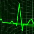 De Micra-pacemaker, een draadloze pacemaker