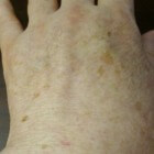 Ouderdomsvlekken op de handen: symptomen en behandeling