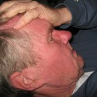 Druk in het hoofd: Oorzaken van drukkend gevoel in schedel