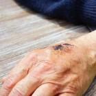 Schaafwonden: Symptomen en behandeling van schaafplekken