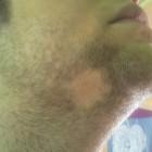 Kale plekken in baard: Oorzaken, symptomen en behandeling
