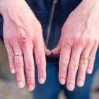 Gebarsten huid: Oorzaken en symptomen van barstjes