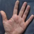 Blaasjes op huid: symptomen en oorzaken van huidblaasjes