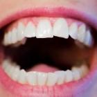 Tanderosie: voorkomen & behandeling