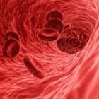 IJzer & bloedarmoede