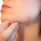 Beauty: Jeugdpuistjes of acne