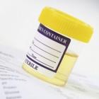 Bloed in urine, bloed plassen, uitdroging, kleur-geur urine