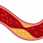 Aderverkalking: symptomen en atherosclerose oorzaken