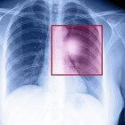 Longkanker: symptomen, oorzaak, stadium en behandeling