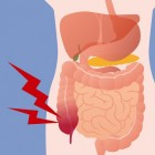 symptomen blindedarmontsteking thuisarts
