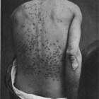 Psoriasis guttata, honderden rode vlekjes huid: behandeling
