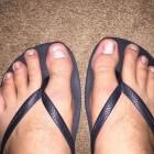 Psoriasis aan de nagels, nagelpsoriasis: putjes, groeven