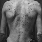 Acne Vulgaris (jeugdpuistjes): oorzaken en behandeling
