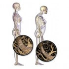 Osteoporose, botontkalking: symptomen, oorzaak & behandeling