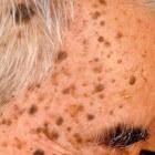 Bruine vlekken op de huid: nek, hand, gezicht, schouder, arm