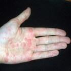 Jeukende handen: jeuk aan handpalm en handrug