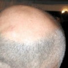 Zoektocht naar wondermiddel tegen kaalheid gaat verder