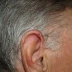 Ontsteking oorschelp: Chondrodermatitis Nodularis Helicis