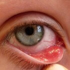 Strontje in het oog: symptomen, oorzaak en behandeling