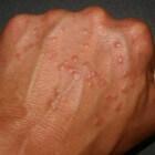 Granuloma annulare: ringvormige huidkleurige bultjes huid