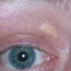 Xanthelasma: verwijderen gele cholesterolbultjes rond ogen