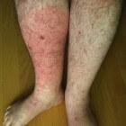 Wondroos: symptomen op been, voet, gezicht en behandeling