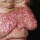 Knobbelneus of rhinophyma: symptomen, oorzaak en behandeling