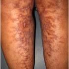 Erythema ab igne of kachelbenen: symptomen en behandeling
